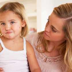 Bebés y niños con sarampión