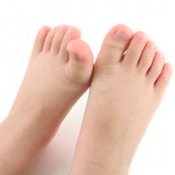 Pie de atleta: síntomas, causas y cura del pie de atleta en los niños