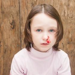 A mi hijo le sangra la nariz, ¿qué hago?