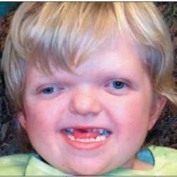 El síndrome de Apert en bebés y niños