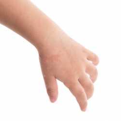 Psoriasis infantil en niños y bebés