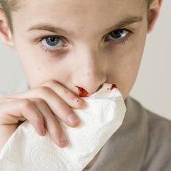 Cómo detener una hemorragia a un niño